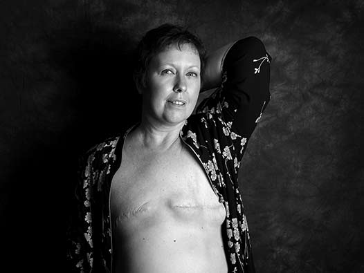 A woman with a double mastectomy scars from breast cancer surgery poses for the camera